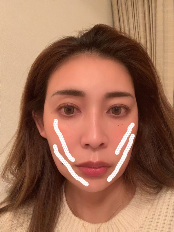 永江理恵の美容医療本音トーク ②